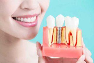 ایمپلنت دندان 1